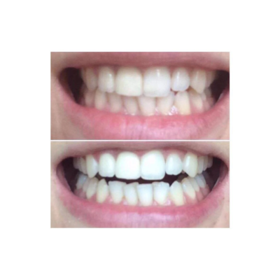 Aktivt Kul tandblegning
